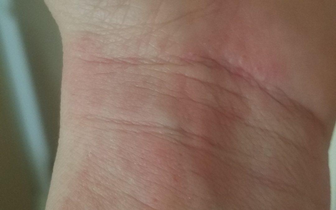 Battling Eczema
